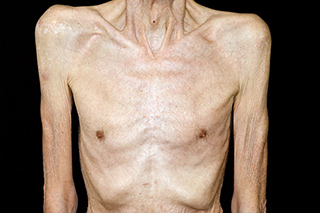 Up to 70% of patients with advanced cancer experience anorexia/cachexia syndrome.