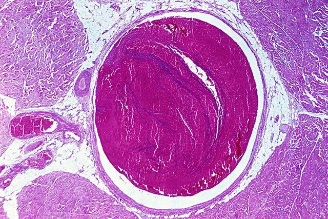 Venous thrombosis, enlarged
