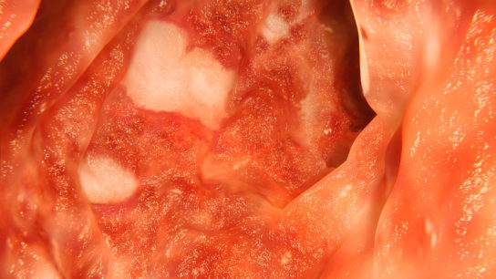 A colon affected by ulcerative colitis.