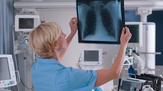 A nurse reviews a radiograph.