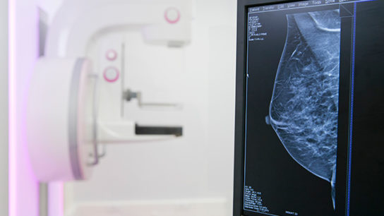 Breast mammography
