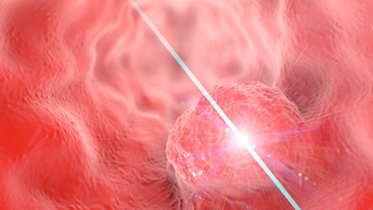 Oesophageal cancer treatment, illustration
