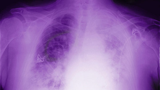 Lung with mesothelioma