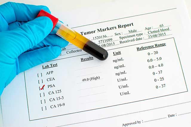 Prostate Health Index (PHI – proPSA, PSA, FPSA értékekből számítva)
