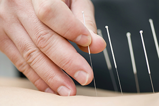 Studies suggest acupuncture benefits patients with cancer, but limitations exist