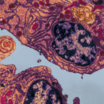 Electron micrograph of a human plasma cell from bone marrow in multiple myeloma / Phototake
