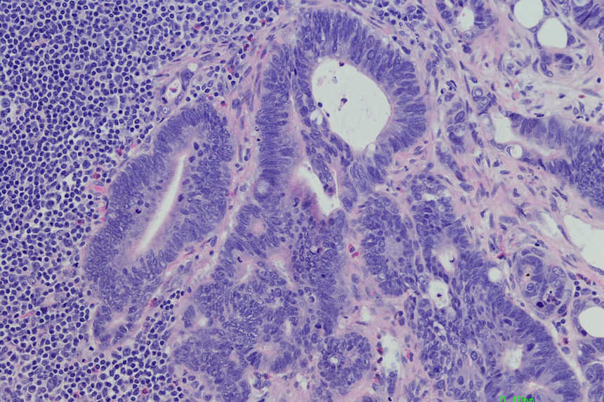 Lymph node with metastatic colonic adenocarcinoma