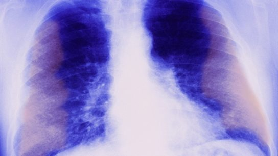 Chronic toxicities, such as fibrosis (shown here), memory loss, infertility and secondary cancers may occur for months or years after treatment, dependent on treatment location, dose, and general medical condition of the patient.3