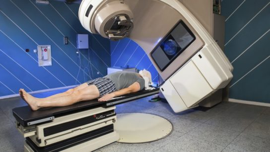 Secondary Cancers Possible With PCa Radiotherapy