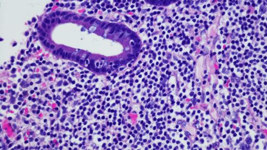 Micrograph of non-Hodgkin lymphoma