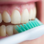 Dental self-care is a factor is successful survivorship.