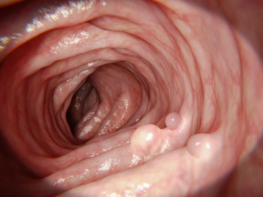 Intestinal polyps