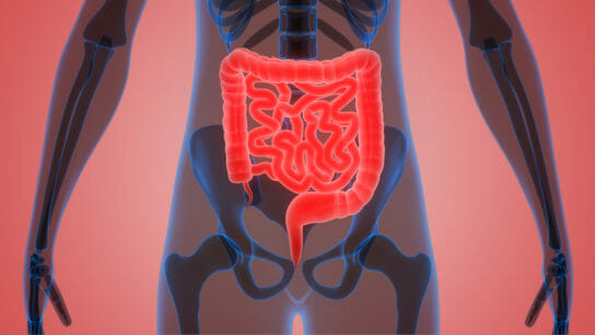 Rarely, patients with prostate cancer will develop metastases to the gastrointestinal tract, which l