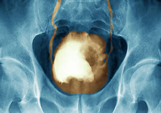 Colored x-ray of a large cancerous bladder tumor (white) / Science Source