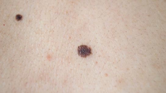 The FDA has approved ipilimumab (Yervoy) for adjuvant treatment of stage 3 cutaneous melanoma after