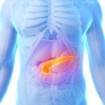 New advances regarding treatment options for metastatic pancreatic cancer.